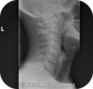 Head Neck Imaging Otorhinolaryngology Portal