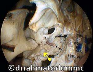 Sphenopalatine Foramen